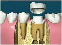 牙冠修复一定要根管治疗吗