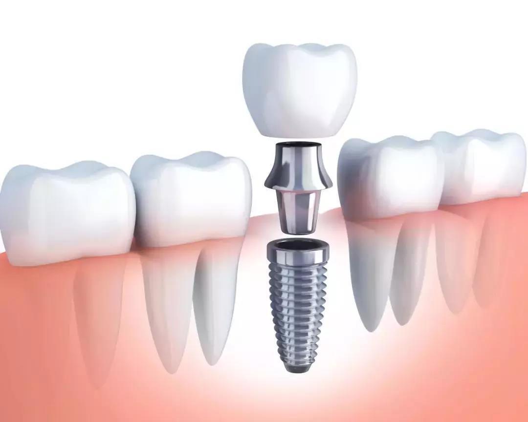 单颗种植牙结构