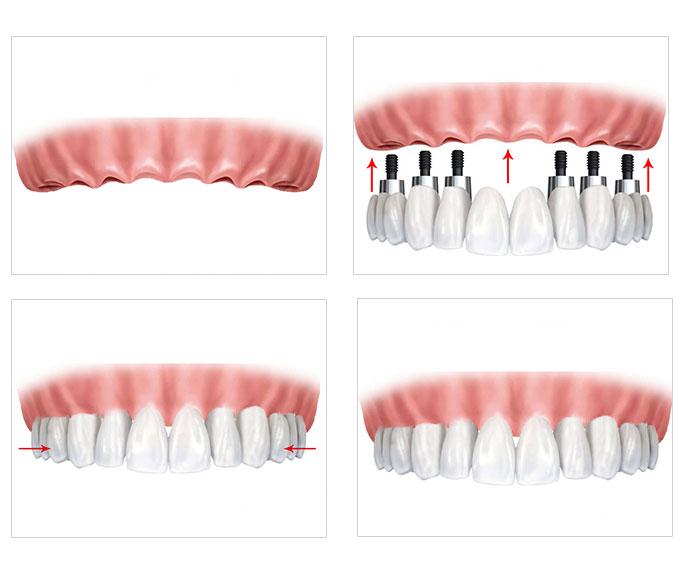 半口种植牙