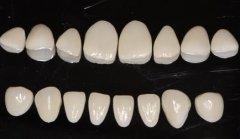 做牙齿贴面要自费吗?不能用医保吗?