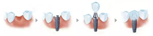 种植牙的过程