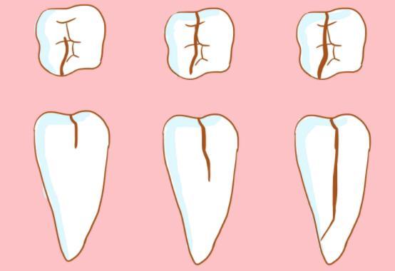 牙隐裂不同程度
