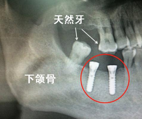 天然牙和种植牙