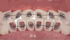 牙齿内侧的隐形牙套是哪种,多少钱