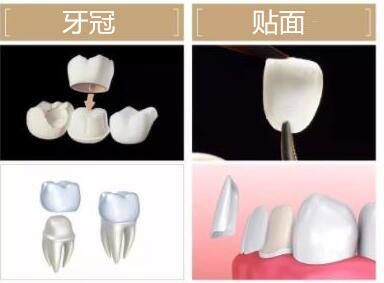 牙冠和贴面的示意图