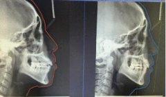 做牙齿矫正一般要拍什么牙片