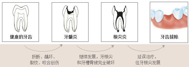 健康的牙齿到拔牙