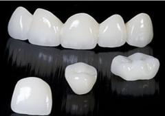 【牙科问题老实答】全瓷牙做完后会比正常的牙齿大吗