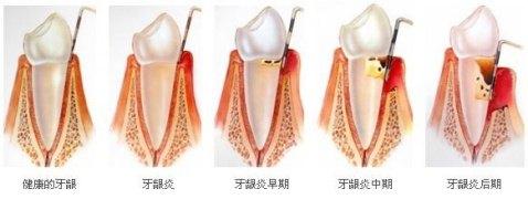 牙龈炎发展