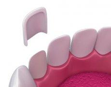 【牙科问题老实答】牙齿贴面的副作用