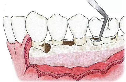 牙齿翻瓣手术