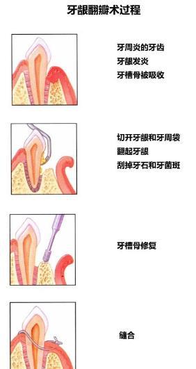 牙龈翻瓣手术过程
