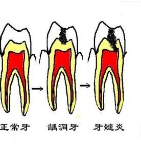 正常牙和有牙洞的牙