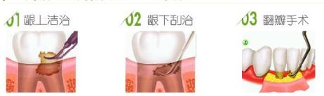 牙周治疗方法