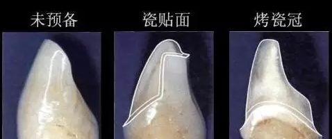 瓷贴面和烤瓷牙备牙量对比图