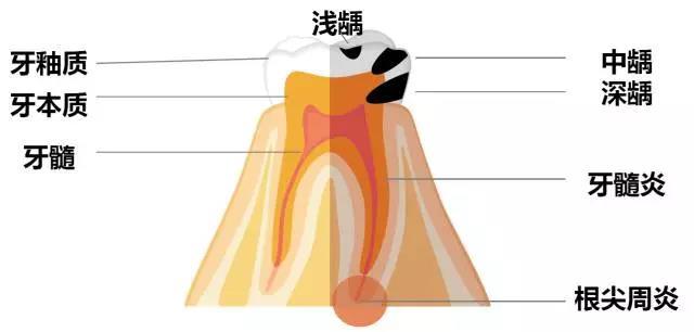 蛀牙发展和牙齿结构