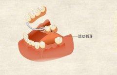 安装活动假牙后可以换成种植牙吗