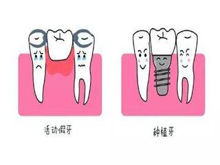 活动假牙和种植牙的区别