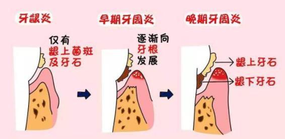 牙周炎发展