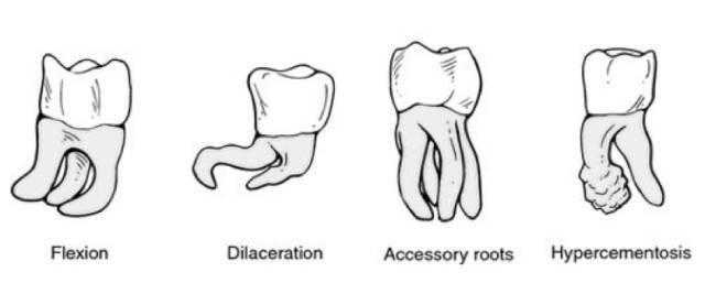 智齿的不同样子