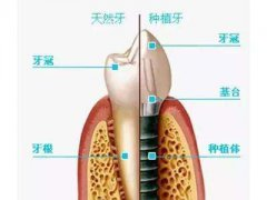 深圳哪家种植牙价格低?