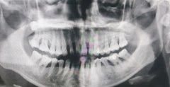 口腔检查之全景片、小牙片、CT片、侧位片等到底多少钱