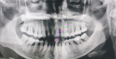 牙周病严重