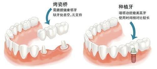 牙齿缺失后种牙和烤瓷牙的区别