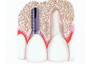 种植牙和真牙
