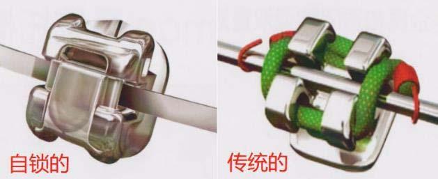 自锁托槽和传统托槽