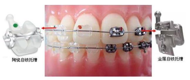 陶瓷自锁牙套和金属自锁牙套的区别