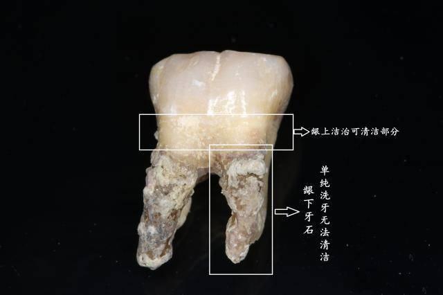 龈上牙结石与龈下牙结石