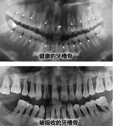 健康的牙槽骨和牙槽骨吸收严重的对比