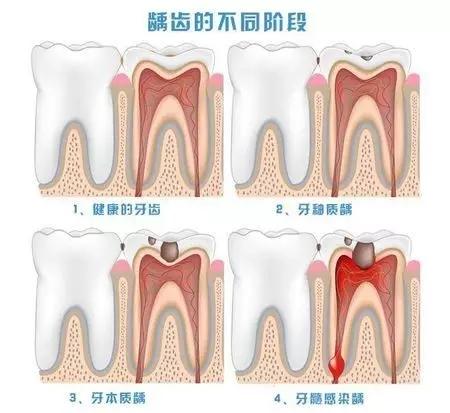 龋齿的不同发展阶段