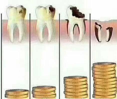 蛀牙坏到不同程度花钱不同