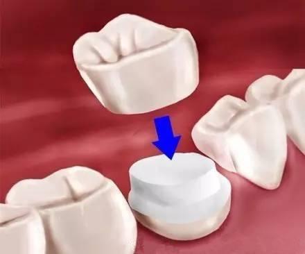 后牙牙冠修复