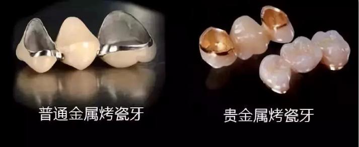 烤瓷牙冠材料相关图