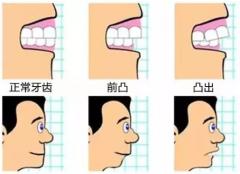 龅牙年纪越大越严重,是不是说来吓唬人的?
