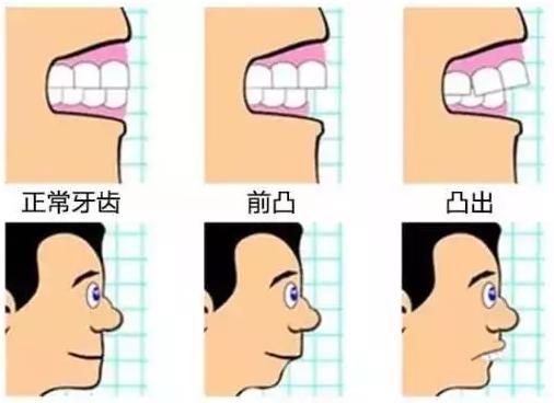 龅牙对面型的影响