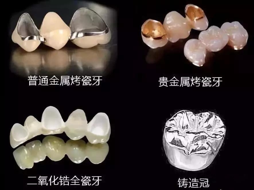 不同材料的牙冠