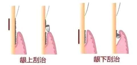 洗牙和龈下刮治的区别