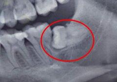 被智齿挤坏的邻牙要拔掉吗?爱康健牙科拔牙贵吗