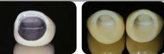 烤瓷牙变黄可以美白吗 贴美白牙贴有用吗