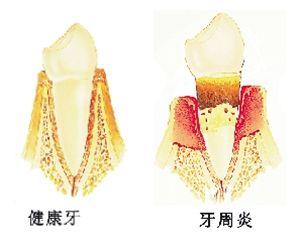 健康牙和牙周炎