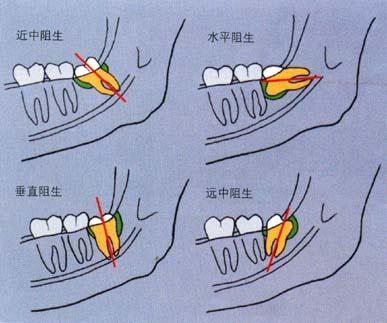 常见阻生智齿
