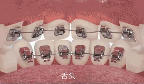 舌侧矫治器