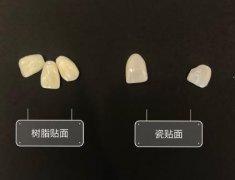 牙贴片材质选择和不同材质做完后结果对比