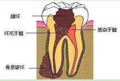 都要做显微根管治疗?牙根尖周炎和牙髓炎有什么区别
