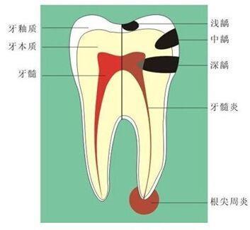 牙齿龋坏到不同牙齿部位