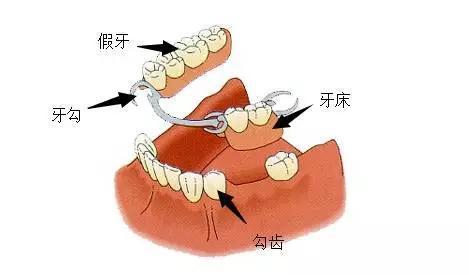 活动义齿的结构示意